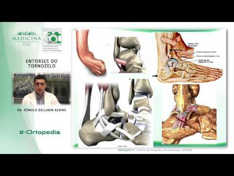 Artrita și tratamentul cu unguent pentru artroză