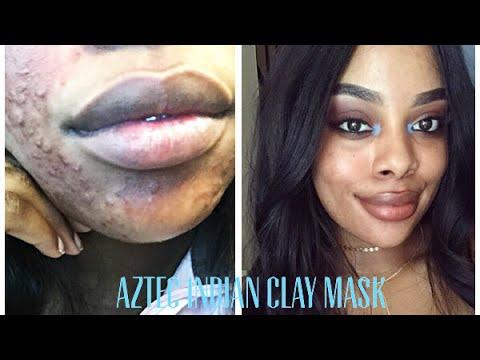 Honey face oil mask ng oliba