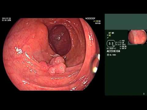 Chronische Prostatitis Wucherungen