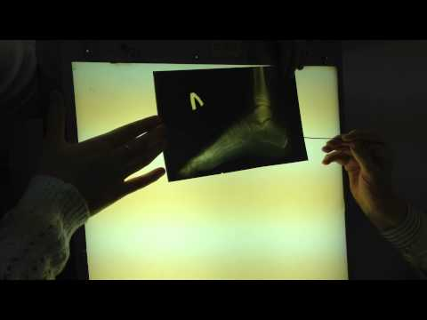 Рентген стопы и голеностопного сустава