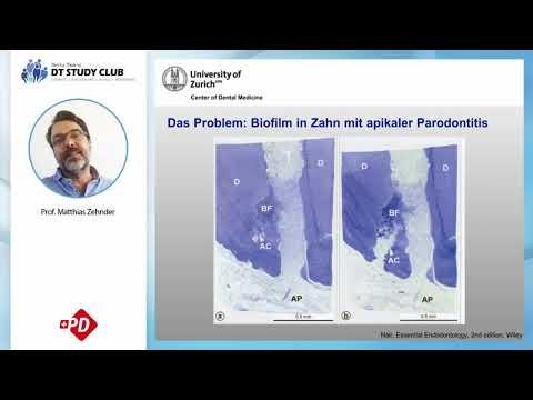 Wie bekomme ich den Wurzelkanals saüber ? Prof. Matthias Zehnder