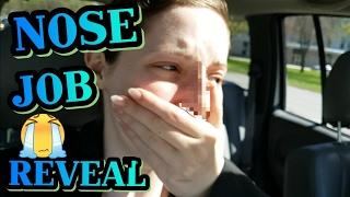 Emotional Rhinoplasty Nose Job Reveal! | Caitlyn Kreklewich