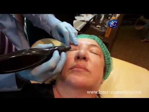 Пигментные пятна на лице в пожилом возрасте