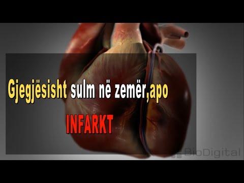 Hipertensioni 1 shkallë si për të përcaktuar