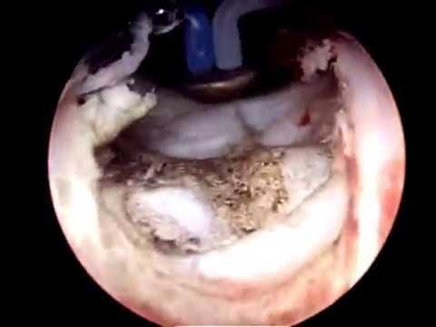 Calcificazioni nella prostata e ai testicoli