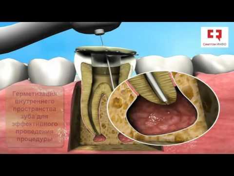 Лечение кисты зуба без операции