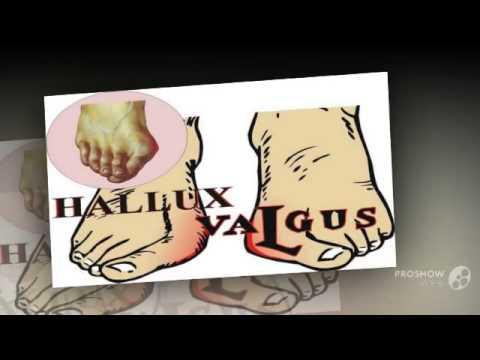 Болит косточка на ноге около большого пальца лечение йодом