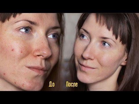 Отбеливание лицо с аспирином