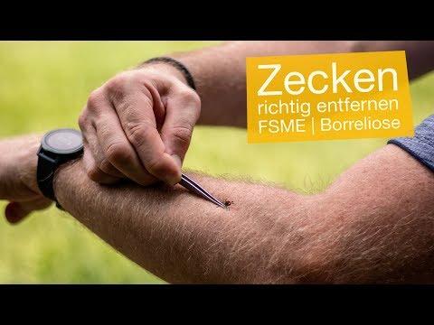 Zecken entfernen mit Pinzette & Zeckenzange 🌿 FSME & Borreliose vermeiden