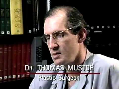 Breast Implants - News Hour with Jim Lehrer - May 30, 1996 Video Image