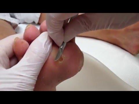 Video Likdoorn onder de voet wegsnijden