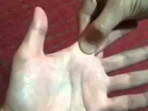 ปลายนิ้วของโรคสะเก็ดเงิน