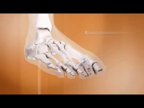 Les baluchons sous-cutanés sur les pieds dans les veines