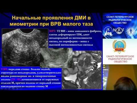 Лечение простатита через анальное отверстие