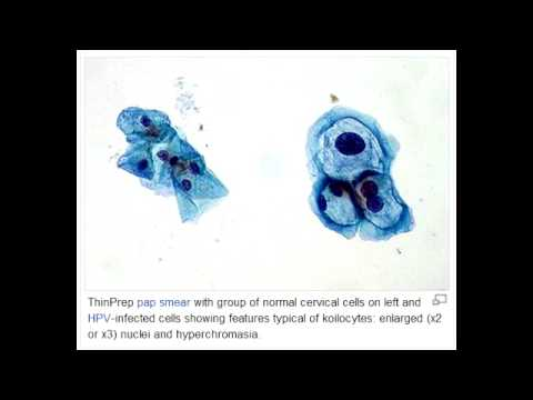 Simptome cancer piele