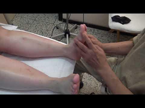 Die Schuppenflechte, wie in anfangs- der Stadien zu behandeln