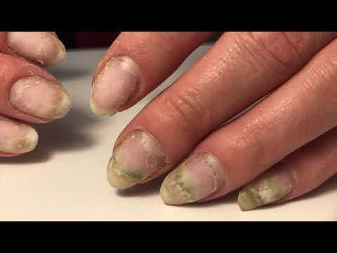 Erbicid contra vezicii biliare