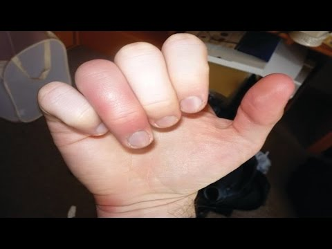 Video How to Treat a Jammed Finger