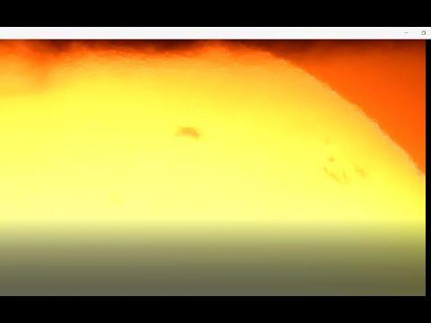 Solnechnaya przez pigmentacji skóry