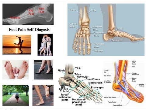 Unde să tratezi durerile de genunchi