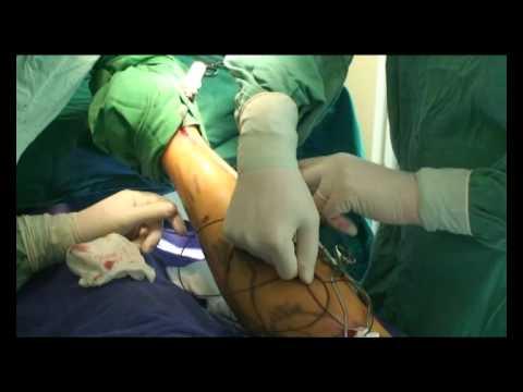 Accident vascular cerebral și vene varicoase