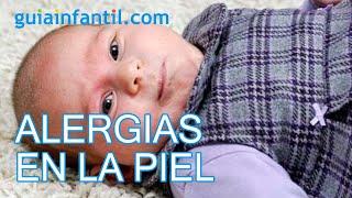 Alergias en la piel de los niños
