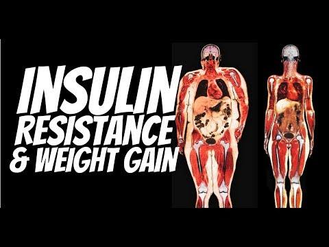 Insulinpumpe Ersatz