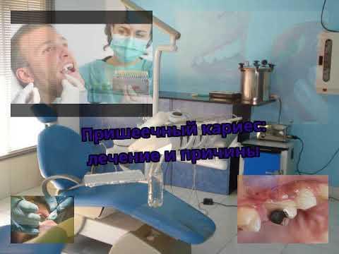 Пришеечный кариес: лечение и причины