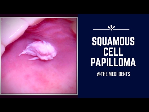 Squamous papilloma lower lip