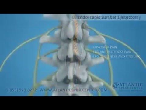 Tecnica di massaggio toracico della colonna vertebrale