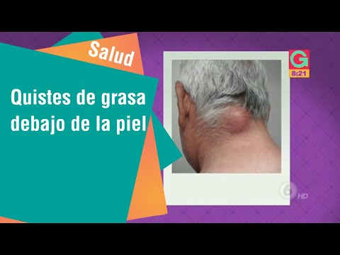 Dolor de cuello vértebras superiores