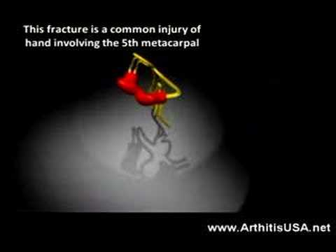 Boxer's Fracture as discussed by doctor Alimorad Farshchian