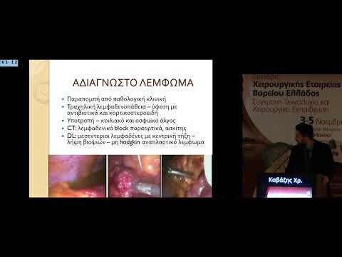 Καβάζης Χρ - Η Εμπειρία Μας Στην Ερευνητική Λαπαροσκόπηση Σε Αδιάγνωστες Ενδοπεριτοναϊκές Καταστάσεις