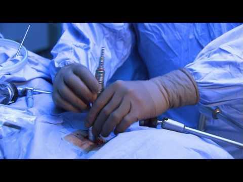 Komplikationen der Osteochondrose der Brust- und Halswirbelsäule