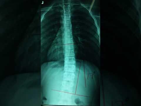 Ginnastica di spina dorsale di lordoz