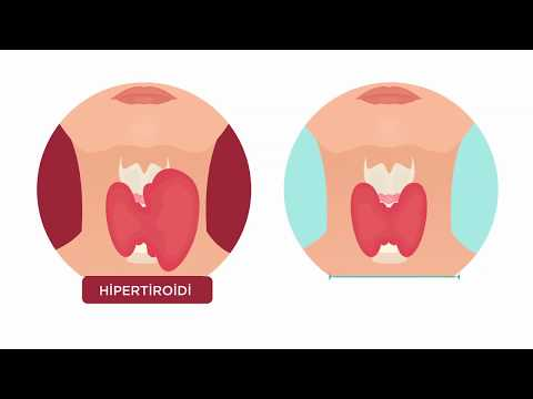 Hipertiroidi nedir?