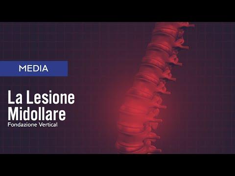 Sembra che la colonna vertebrale con osteocondrosi