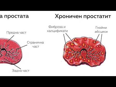 Какво се случва с член с масаж на простатата