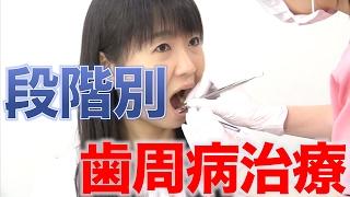 歯科医院での段階別歯周病治療