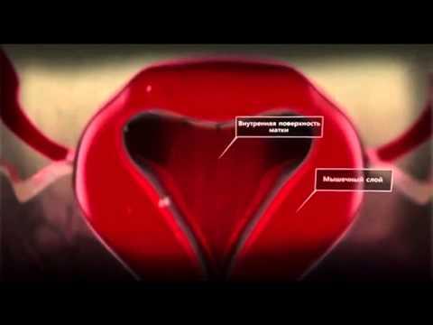 Рак предстательной железы 3 степени метастазы в кости