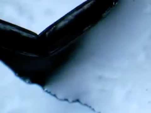 Les onguents du microorganisme végétal des ongles des pieds
