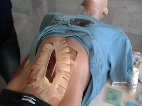 Wie die Parasiten des Meerschweinchens dem Menschen übergeben werden