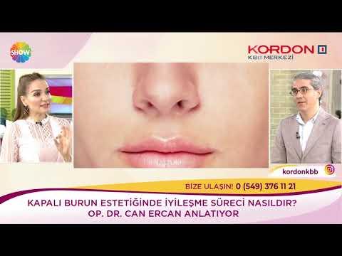 Can Ercan - Burun Estetiği Sonrası Şişme Ve Morluk - Show Tv Kendine İyi Bak