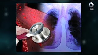 Diálogos en confianza (Salud) - Hipertensión pulmonar