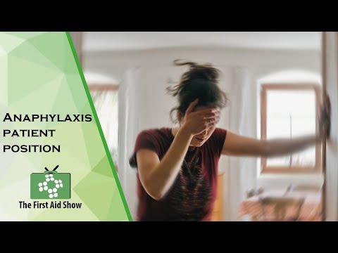 Ułożenie pacjenta w anafilaksji