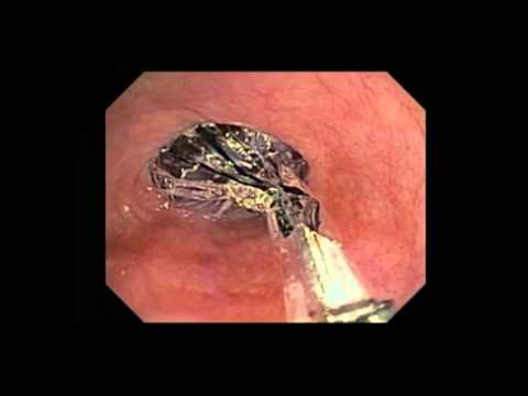 Video Barrett's Esophagus Advanced Imaging Options