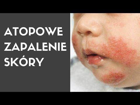 Atopowe zapalenie skóry u 8 lat