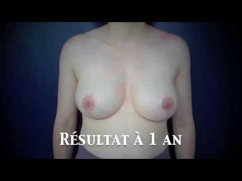 Implanty à la poitrine et mrt
