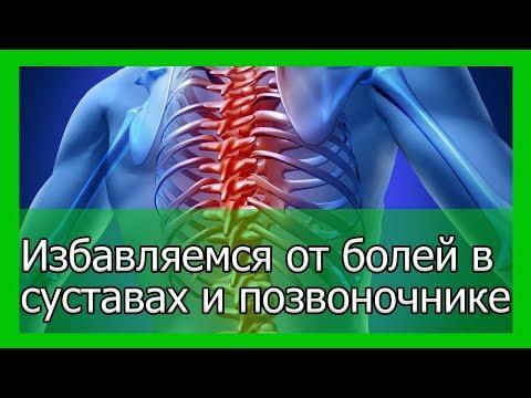 Классификация остеохондроз поясничного отдела позвоночника