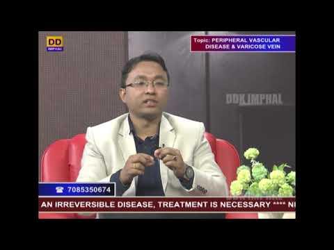 Manifestările primare ale tratamentului cu varicoză varicoză